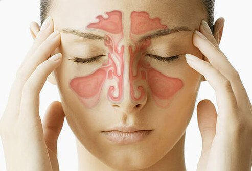 Sinus pressure and chiropractic!