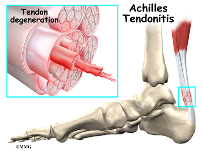 Don't tear a damaged tendon. Repair it.