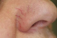couperose and rosacea on the cheeks and nose