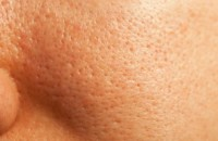 congested skin white heads and black heads