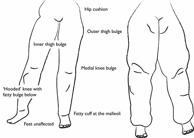 About Lipedema and Resourses