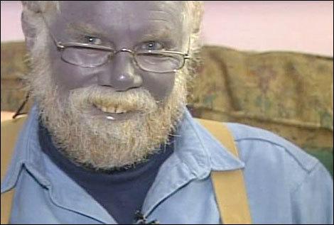 blue man, blue skin hoax