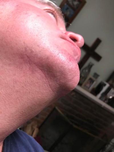 Skin Cancer gone after four months