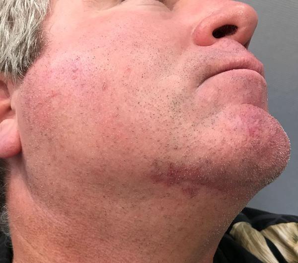 Skin Cancer on Jack