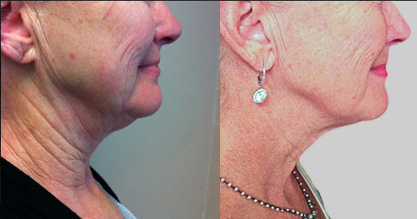 Face and Neck Wrinkle Reduction