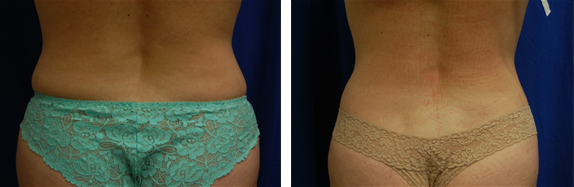 Exilis for fat reduction