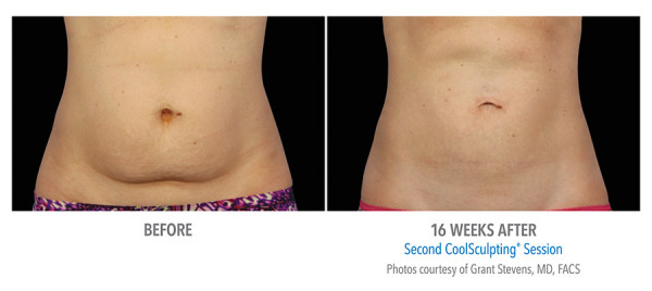 coolsculpting belly