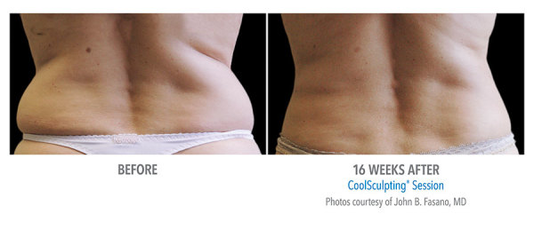 CoolSculpt Love Handles