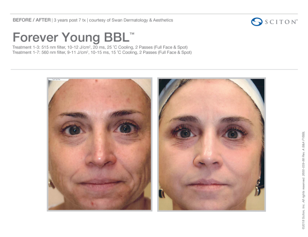 IPL Photo Facial l Eternal Beauty Medical Clinic Los Gatos CA