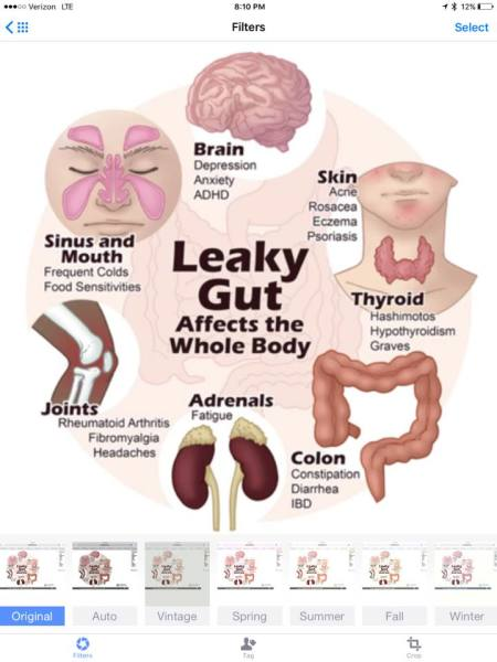Leaky Gut Syndrome  Photo Cred: Dr. Axe