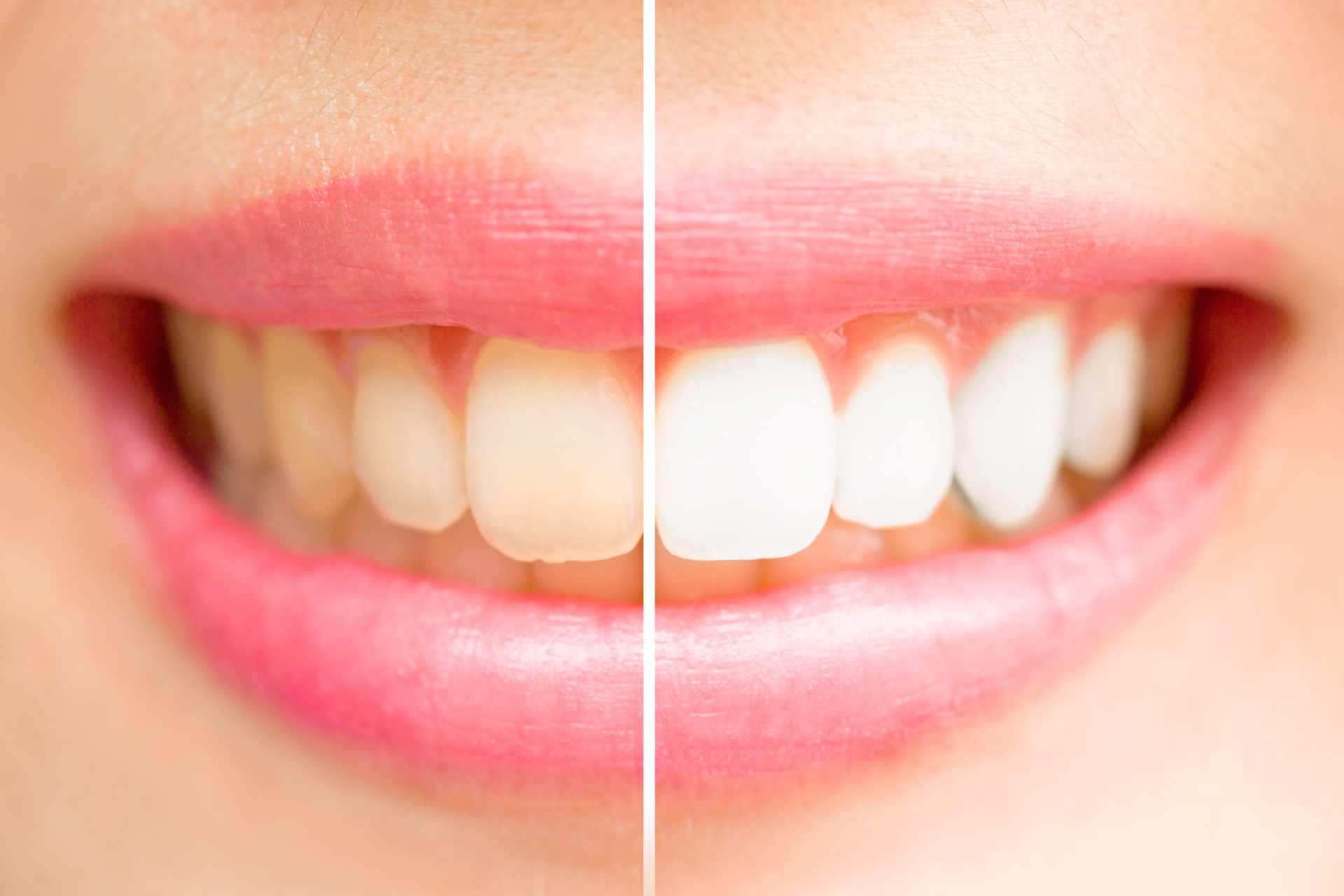 teeth, whitening, before, after, brighter, smile, whiter, better, results, big, white, dentist, ithaca, cornell