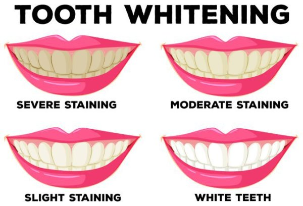 teeth, whitening, shade, before, after, whiter, brighter, smile, ithaca, big, white, cornell,