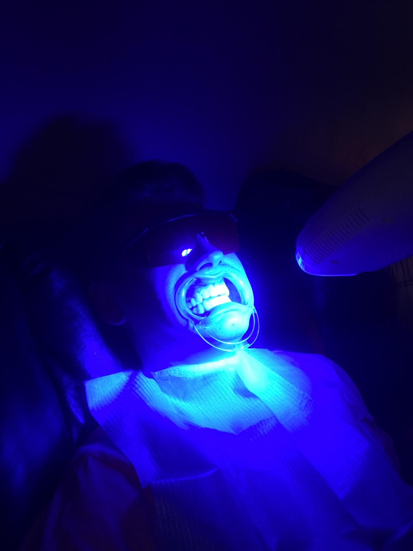 teeth, whitening, big, white, ithaca, cornell, smilelabs