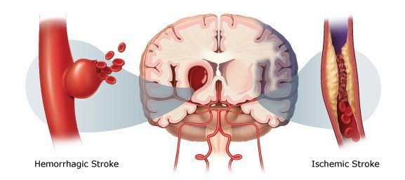 Hemorrhagic and Ischemic stroke