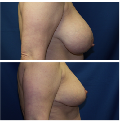 South Florida Breast Reduction