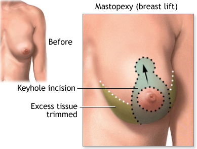 Fort Lauderdale Breast Lift