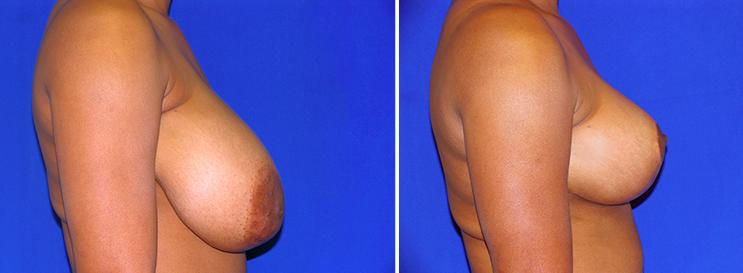 Breast Lift Comparison Miami