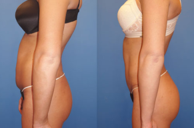 Before and After Lipo Fort Lauderdale