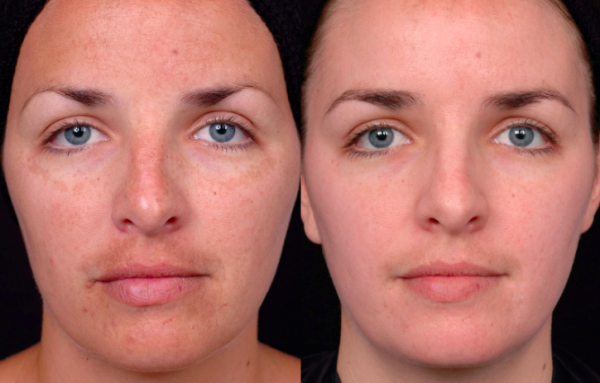 ft lauderdale chemical peel before and after