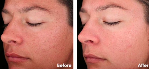 Before and after chemical peel ft lauderdale