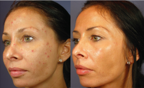 chemical peel before after pics boca