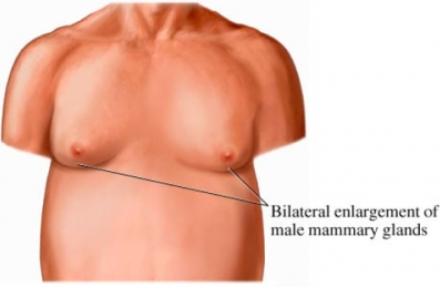 Male breast surgery Ft Lauderdale