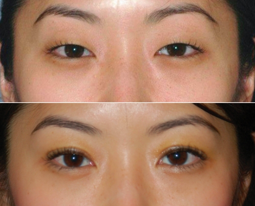Eyelid Surgery Asian South Beach
