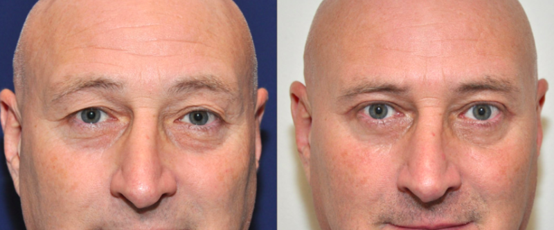 Eyelid Surgery Male Ft Lauderdale