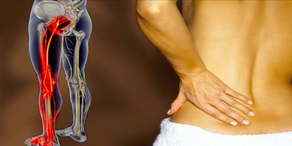 Il disagio del nervo sciatico è un segno e il sintomo di un motivo