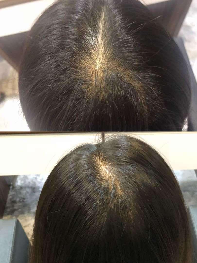 #hairgrow #hairgrowth #haircare #hairloss