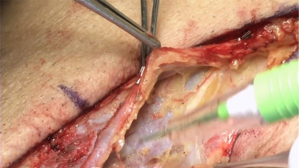 No Touch-technique to Harvest the Saphenous Vein for CABG-Surgery