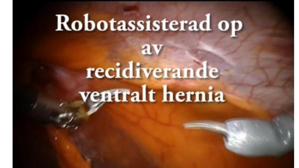 Robotassisterad operation av ventralt bråck