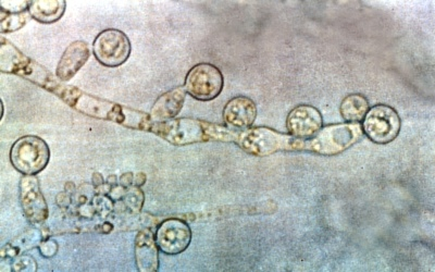 CANDIDA is NOT THE BAD GUY
