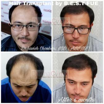 Various Mechanisms of Hair Transplant Technique