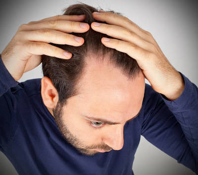 Let's Learn About Laser Hair Therapy and Hair Loss