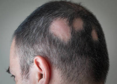 Are You Curious About Laser Treatment for Hair Growth?