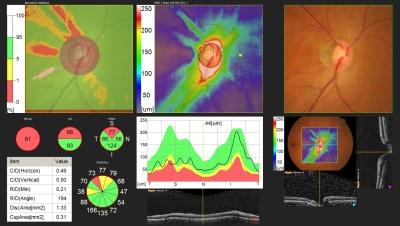 Glaucoma Diagnostics