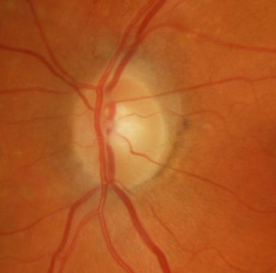 HD Retinal Imaging