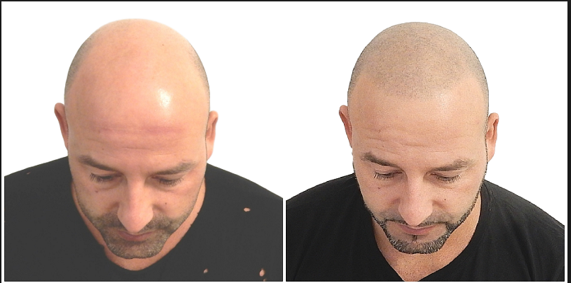 Why You Should Get a Hair Transplant