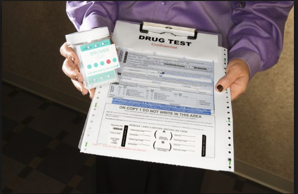Tips to Consider on a Drug Screening Test