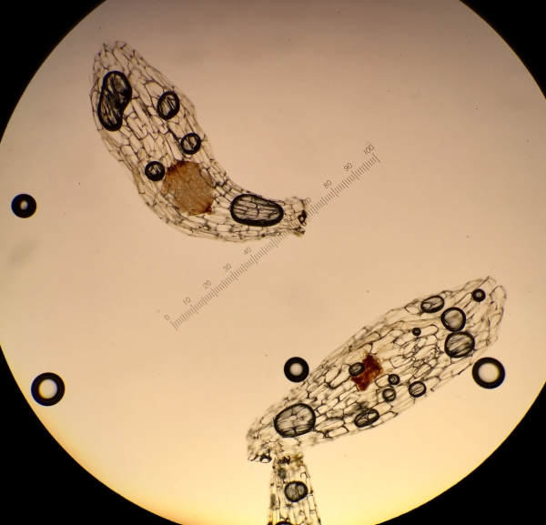 My Cyp reginae seeds under a microscope.