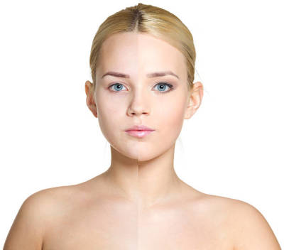 The Health Benefits of Cosmetic Treatments