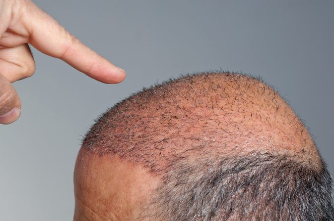 How to Pick a Hair Transplant Clinic