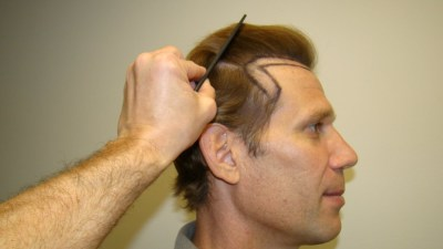 Hair Transplant Clinic: Getting The Expert Treatment By Picking the Best Clinic