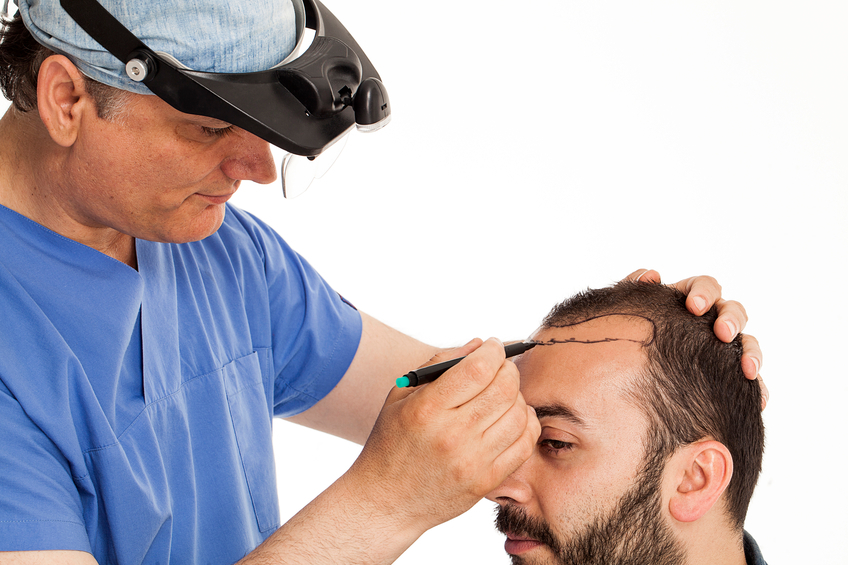 The Great Benefits of Hair Transplant Surgery