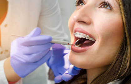 Aspects to Consider When Choosing the Best Orthodontist