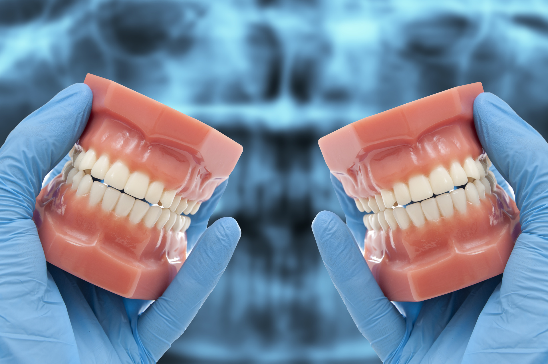 All You Need To Know About All on Four Dental Implants