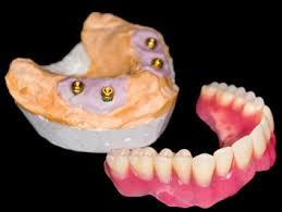 A Guide to Implant Supported Dentures