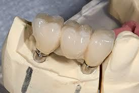 Tips to Choosing a Clinic for Implant Support Dentures