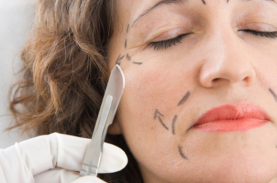 Four Critical Matters You Should Examine When Choosing the Right Plastic Surgeon